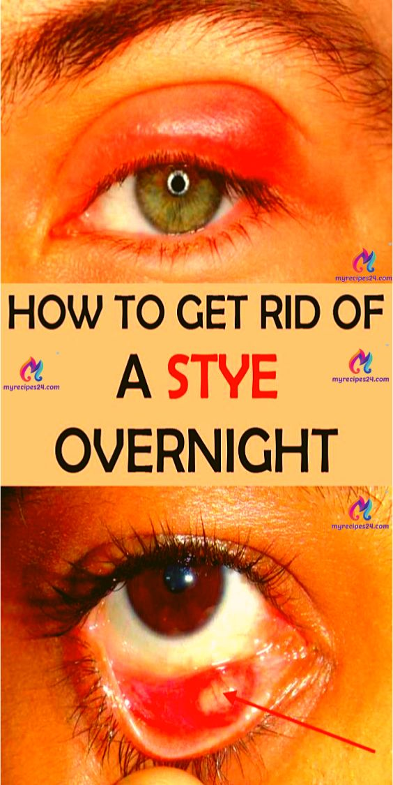 How To Get Rid Of a Stye Overnight!!! – You Did Know